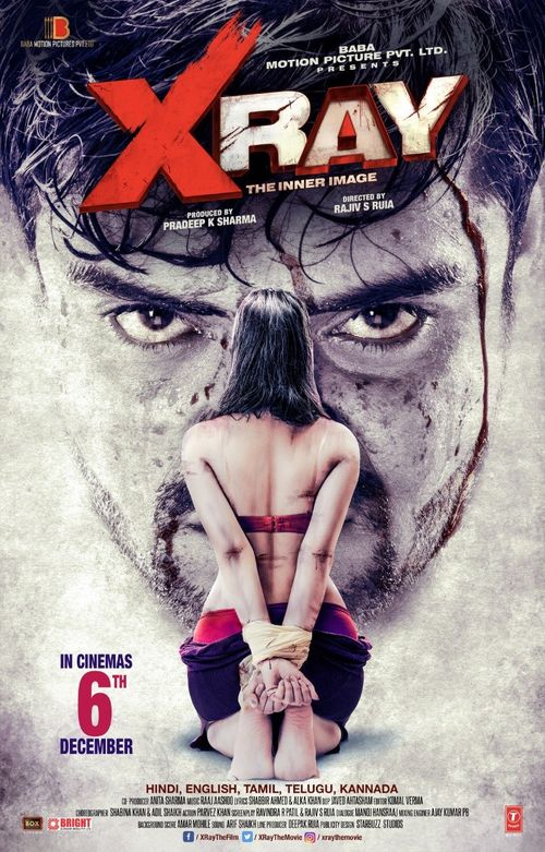 X Ray Movie Review