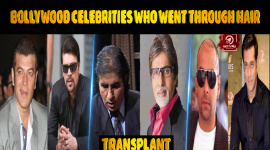 Bollywood Celebrities Who Went Through Hair Transplants