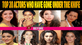 Top 20 Bollywood Actors Who Have Gone Under The Knife