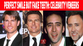 Perfect Smile But Fake Teeth: Celebrity Veneers