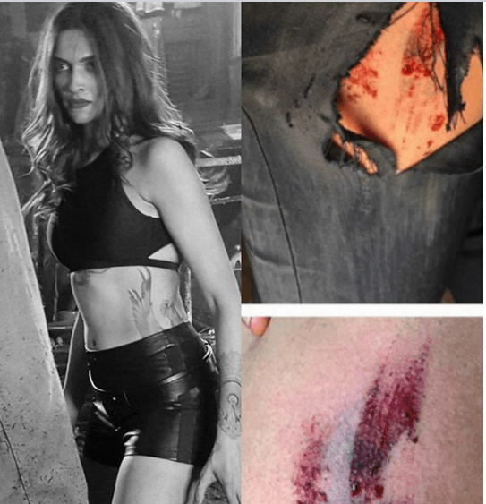 Nina Dobrev Injured On The Sets Of 'xXx': The R..